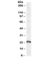 Western blot testing of human testis lysate with ARL4A antibody at 2ug/ml. Predicted/observed molecular weight: ~23kDa.
