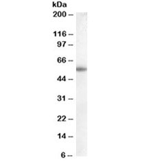 Western blot testing of human placenta lysate with Aromatase antibody at 0.1ug/ml. Predicted molecular weight ~58kDa.