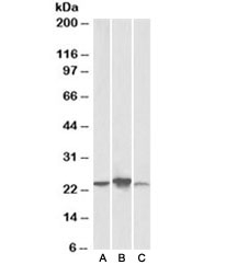 Western blot testing of human [A], mouse [B], rat [C] liver lysate with ABHD14B antibody at 0.3ug/ml. Predicted molecular weight: ~22kDa.