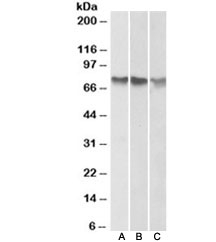 Western blot of human A) HepG2, B) K562 and C) HeLa cell lysate (nuclear fractions)  with ATF2 antibody at 1ug/ml. Expected molecular weight: 65-70 kDa.