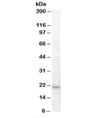 Western blot testing of human pancreas lysate with ARMET antibody at 0.3ug/ml. Predicted molecular weight: ~21kDa.