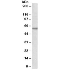 Western blot testing of MCF7 lysate with ALK1 antibody at 2ug/ml. Predicted molecular weight ~60 kDa.