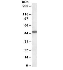 Western blot testing of human liver lysate with AADAT antibody at 1ug/ml. Predicted molecular weight: ~47kDa.