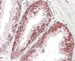 IHC staining of FFPE human prostate with alpha Catenin antibody at 3.8ug/ml. HIER: steamed with pH6 citrate buffer, AP-staining.