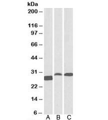 Western blot testing of A) human tonsil, B) rat spleen, C) pig spleen lysates with APRIL antibody at 0.1ug/ml. Predicted molecular weight: ~28kDa.