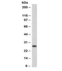 Western blot testing of human tonsil lysate with biotinylated APRIL antibody at 0.2ug/ml. Predicted molecular weight: ~28kDa.