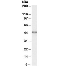 Western blot testing of human liver lysate with ACAT1 antibody at 0.01ug/ml. Predicted molecular weight: ~45kDa.