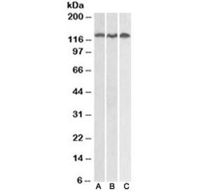 Western blot testing of Daudi (A), Jurkat (B) and HeLa (C) lysates with ADAM17 antibody at 0.3ug/ml. Expected molecular weight: 80-130 kDa depending on level of glycosylation