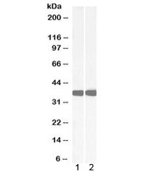 Western blot testing of 1) mouse liver and 2) rat liver lysate with Arginase antibody at 0.05ug/ml. Predicted molecular weight ~35kDa.