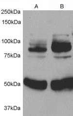 Western blot testing of rat aortic smooth muscle cells before (1) and after (2) infection with human APPL1 adenovirus for 48hrs. APPL1 antibody was used at 0.5ug/ml. The expected ~80kDa response is significantly stronger in the infected sample.