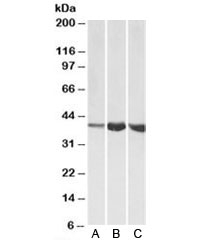Western blot testing of A) human, B) mouse and C) rat skeletal muscle lysates with Aldolase A antibody at 1ug/ml. Predicted molecular weight: ~40kDa.
