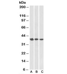 Western blot testing of A431 [A], HeLa [B] and MCF7 [C] nuclear lysates with APE1 antibody at 0.3ug/ml. Expected/observed molecular weight: ~38kDa.