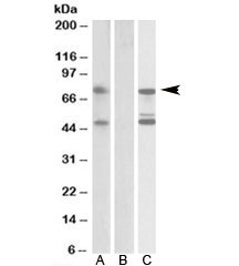 Western blot testing of HEK293 lysate overexpressing human ASNSD1-FLAG probed with ASNSD1 antibody [1ug/ml] in Lane A and anti-FLAG (1/10000) in Lane C. Mock-transfected HEK293 probed with ASNSD1 antibody [1ug/ml] in Lane B. Predicted molecular weight: ~72kDa.