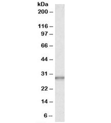 Western blot testing of human liver lysate with CA1 antibody at 0.03ug/ml. Predicted/observed molecular weight: ~29kDa.