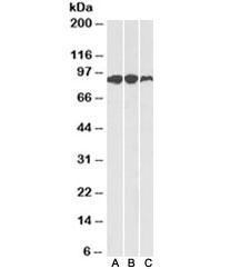 Western blot of human (A), mouse (B) and rat (C) adipose lysates with Aconitase 2 antibody at 0.1ug/ml. Predicted molecular weight: ~85kDa.