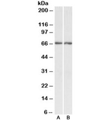 Western blot testing of human A) cerebellum and B) hippocampus lysate with Acetylcholinesterase antibody at 0.3ug/ml. Predicted molecular weight ~67kDa.