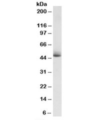 Western blot testing of human albumin-depleted plasma lysate with APOH antibody at 1ug/ml. Predicted molecular weight: ~38/50kDa (unmodified/glycosylated).