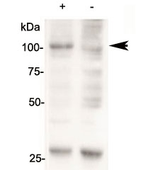 Western blot of 143B cells overexpressing human AARS2 tested with AARS2 antibody (mock transfection in lane 2). Predicted molecular weight: ~107kDa.