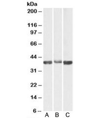 Western blot testing of A) human, B) mouse and C) rat skeletal muscle lysates with Aldolase A antibody at 0.03ug/ml. Predicted molecular weight: ~40kDa.