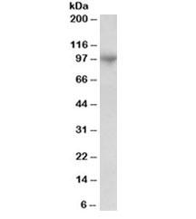 Western blot testing of human bone marrow lysate with ADAM8 antibody at 1ug/ml. Predicted molecular weight: ~89/79kDa (isoforms 1/3).
