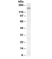 Western blot testing of cerebellum lysate with ABCA9 antibody at 0.1ug/ml. Predicted molecular weight: ~184 kDa.