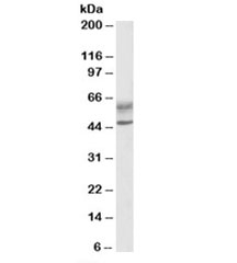 Western blot testing of human lymph node lysate with AIRE antibody at 0.5ug/ml. Predicted molecular weight: ~58/37kDa (isoforms 1/2). Both observed bands are both blocked by the immunizing peptide.