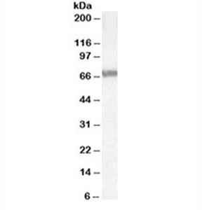 Western blot testing of Jurkat lysate with ABCD4 antibody at 0.3ug/ml. Predicted molecular weight: ~69 kDa.