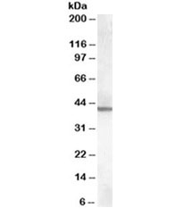 Western blot testing of mouse brain lysate with ABHD12 antibody at 0.3ug/ml. Predicted molecular weight: ~45kDa.
