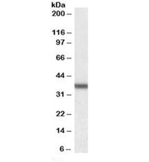 Western blot testing of human liver lysate with Arginase antibody at 0.01ug/ml. Predicted molecular weight ~35kDa.