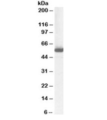 Western blot testing of human liver lysate with ALDH1 antibody at 1ug/ml. Predicted molecular weight ~55 kDa.
