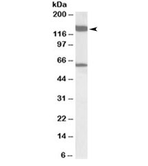 Western blot testing of rat testis lysate with AF10 antibody at 1ug/ml. Predicted/observed molecular weight: ~109/140kDa.