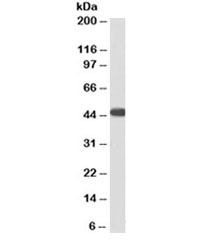 Western blot testing of human heart lysate with ACADM antibody at 3ug/ml. Predicted molecular weight: ~46kDa. An NAP blocker was used in place of non-fat milk as blocking solution and diluent. (1)