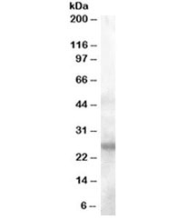 Western blot testing of human tonsil lysate with AID antibody at 0.1ug/ml. Predicted molecular weight ~24kDa.