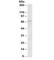 Western blot testing of human heart lysate with ACADVL antibody at 1ug/ml. Predicted molecular weight: ~68 kDa.