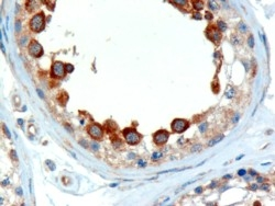 IHC testing of FFPE human testis with ALMS1 antibody at 2ug/ml. Microwaved antigen retrieval with Tris/EDTA buffer pH9, HRP-staining.