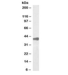 Western blot testing of human liver lysate with biotinylated Alcohol dehydrogenase antibody at 2ug/ml. Predicted molecular weight: ~40kDa.
