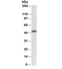 Western blot testing of human prostate lysate with ACPP antibody at 0.3ug/ml. Expected molecular weight: 45-50 kDa.