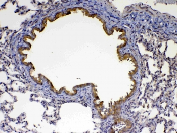 IHC testing of FFPE rat lung tissue with Factor D antibody at 1ug/ml. Required HIER: steam section in pH6 citrate buffer for 20 min and allow to cool prior to testing.