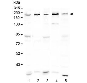 Western blot testing of human 1) HeLa, 2) COLO320, 3) 293T, 4) Jurkat and 5) mouse testis lysate with ASXL1 antibody at 0.5ug/ml. Predicted molecular weight ~165 kDa, observed here at ~220 kDa.