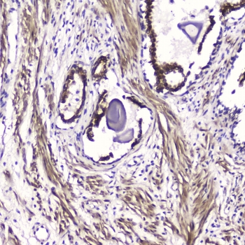 IHC testing of FFPE human prostate cancer with ATF4 antibody at 2ug/ml. HIER: boil tissue sections in pH6, 10mM citrate buffer, for 10-20 min followed by cooling at RT for 20 min.