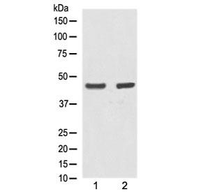 Western blot testing of human 1) A431 and 2) MCF7 lysate with Alpha Actin antibody at 0.5ug/ml. Expected molecular weight: 42-45 kDa.