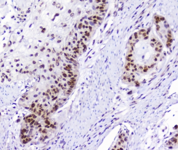IHC staining of FFPE human esophagus squamous cancer with AHR antibody at 1ug/ml. HIER: boil tissue sections in pH6, 10mM citrate buffer, for 10-20 min followed by cooling at RT for 20 min.