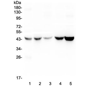 Western blot testing of human 1) placenta, 2) HEp-2, 3) HeLa, 4) A549 and 5) PANC-1 lysate with Alpha 1 microglobulin antibody at 0.5ug/ml. Predicted molecular weight: 26-28 kDa (Alpha 1 microglobulin), ~39 kDa (uncleaved AMBP). These proteins may be observed at higher molecular weights due to glycosylation.