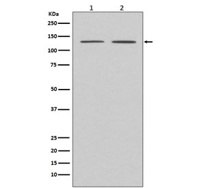 Western blot testing of human 1) HeLa and 2) MCF7 cell lysate with APAF1 antibody. Predicted molecular weight ~140 kDa.