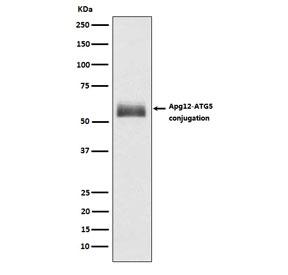 Western blot testing of human HepG2 lysate with ATG12 antibody. Expected molecular weight: ~15 kDa (ATG12) and 50-60 kDa (ATG12-ATG5 complex).