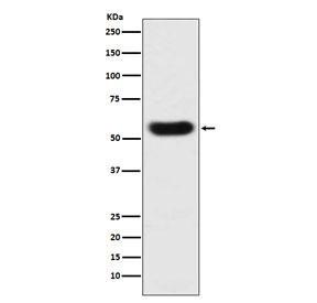 Western blot testing with Antithrombin III antibody. Predicted molecular weight ~52 kDa.