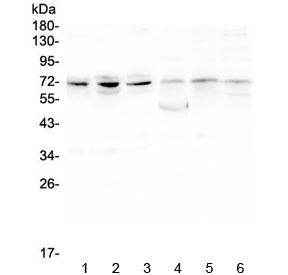 Western blot testing of 1) human PC-3, 2) human A549, 3) human HepG2, 4) rat ovary, 5) rat lung and 6) rat testis lysate with ARNTL2 antibody at 0.5ug/ml. Predicted molecular weight ~71 kDa.
