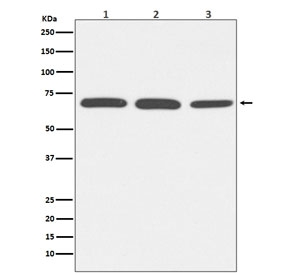 Western blot testing of 1) human HeLa, 2) mouse NIH3T3 and 3) rat PC-12 lysate with Serum Albumin antibody. Predicted molecular weight ~66 kDa.