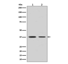 Western blot testing of human 1) fetal liver and 2) fetal lung lysate with Arginase 1 antibody. Predicted molecular weight ~35 kDa.