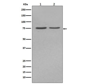 Western blot testing of human 1) HepG2 and 2) JAr cell lysate with ALPL antibody. Predicted molecular weight ~57 kDa, but can be observed at up to ~75 kDa due to glycosylation.